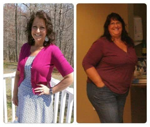 Weight Watchers Success: Shirley After and Before Losing 108 pounds