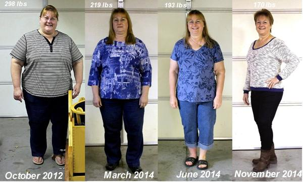 Janell J. Before and After 120 lb Weight Loss