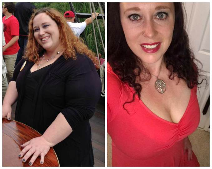 Hope Before & After Weight Loss Success