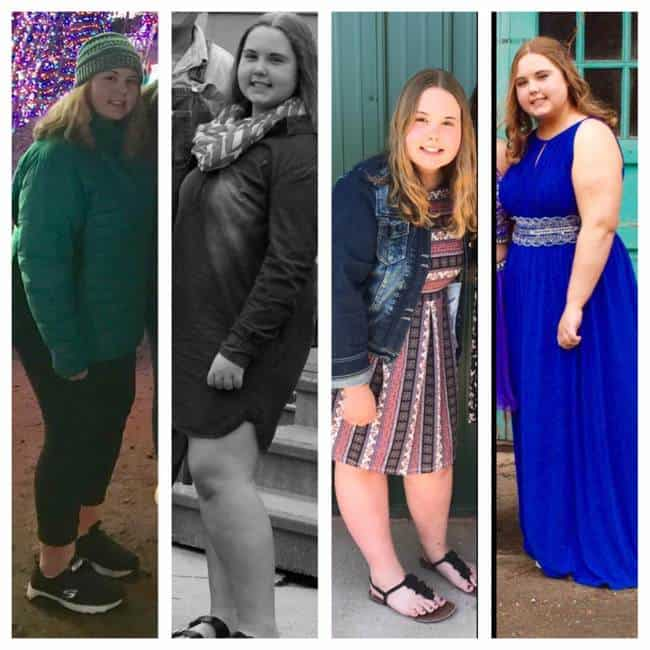 Mandy's Weight Loss Journey
