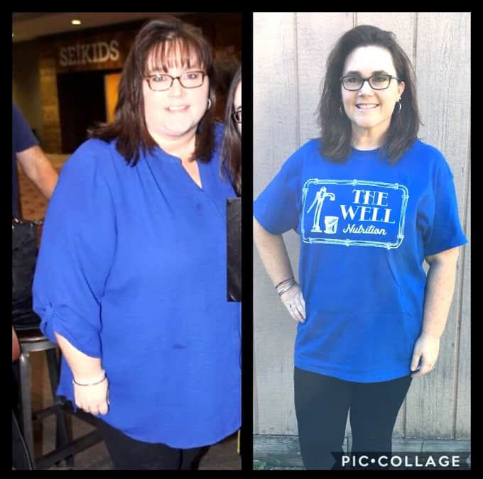 Before and After Weight Loss - Laura T.